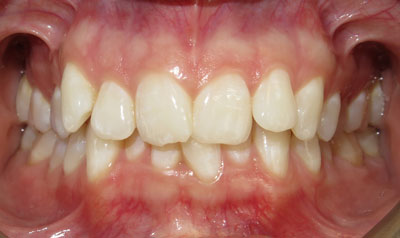 Invisalign Case (Before)