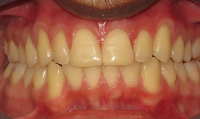 Invisalign Case (After)